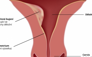 Rakovina dělohy
