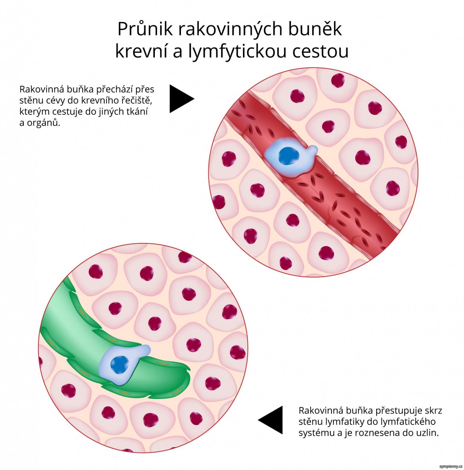 Průnik rakovinných buněk krevní a lymfytickou cestou