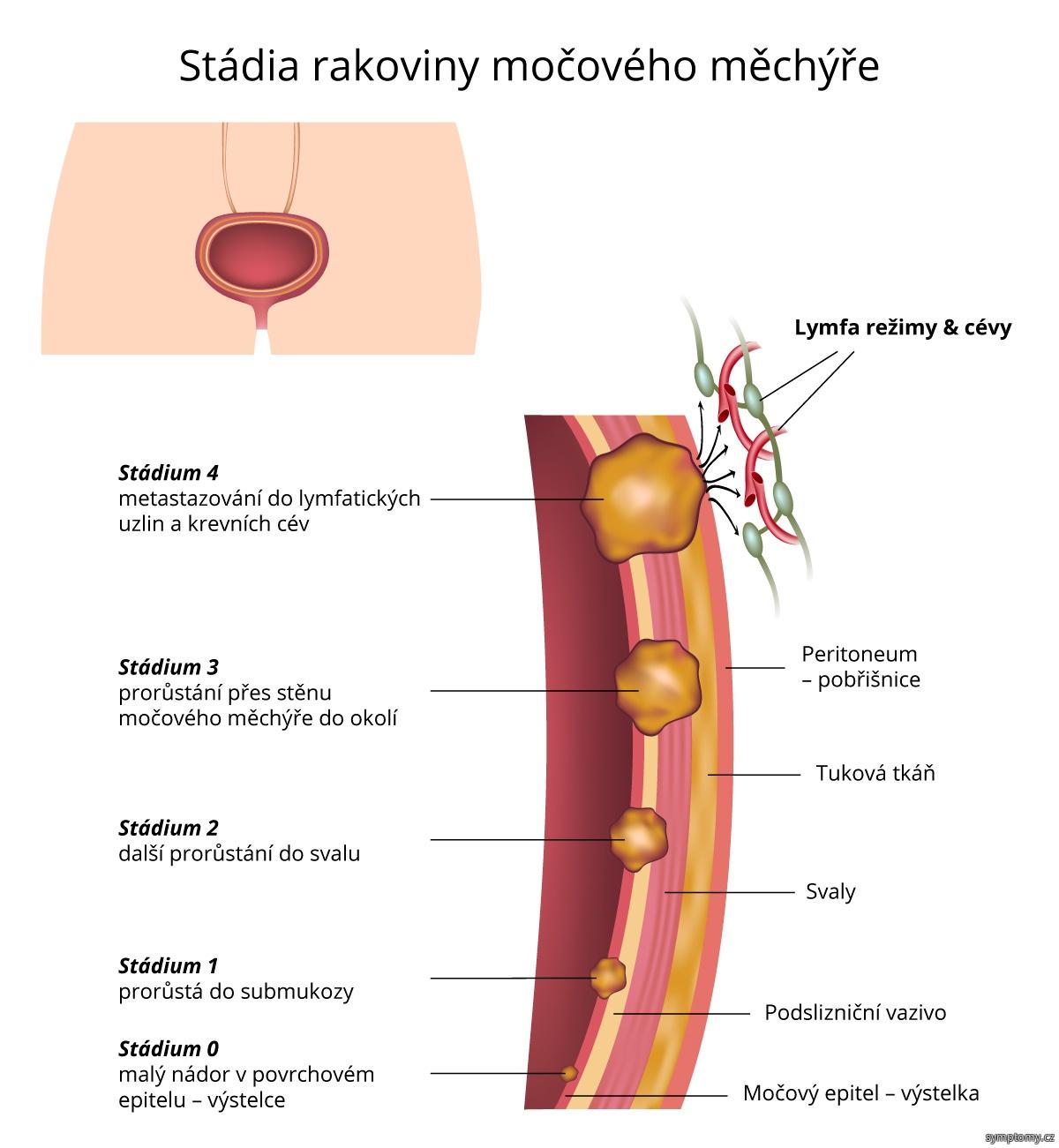 Stádia rakoviny močového měchýře