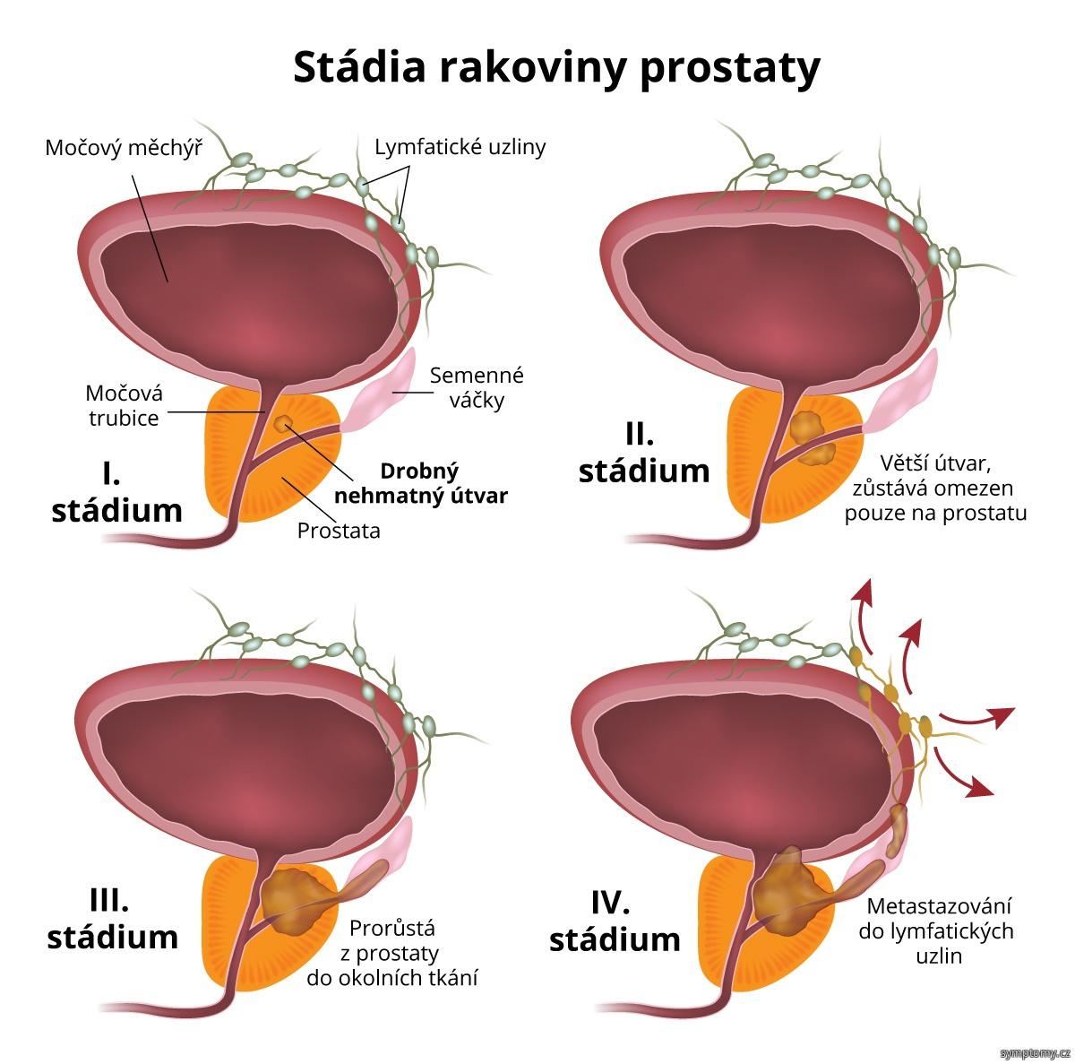 Stádia rakoviny prostaty