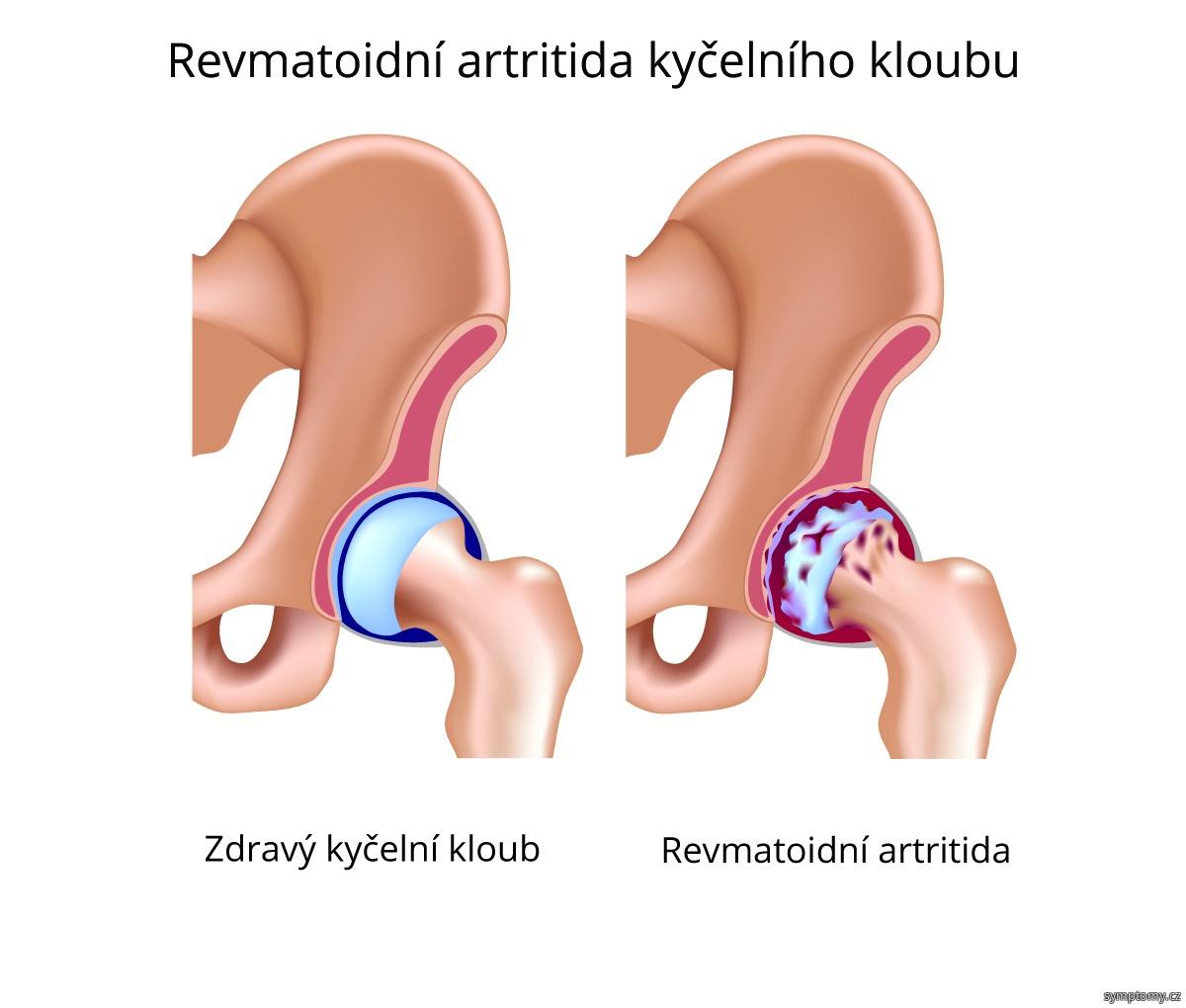 Revmatoidní artritida kyčelního kloubu