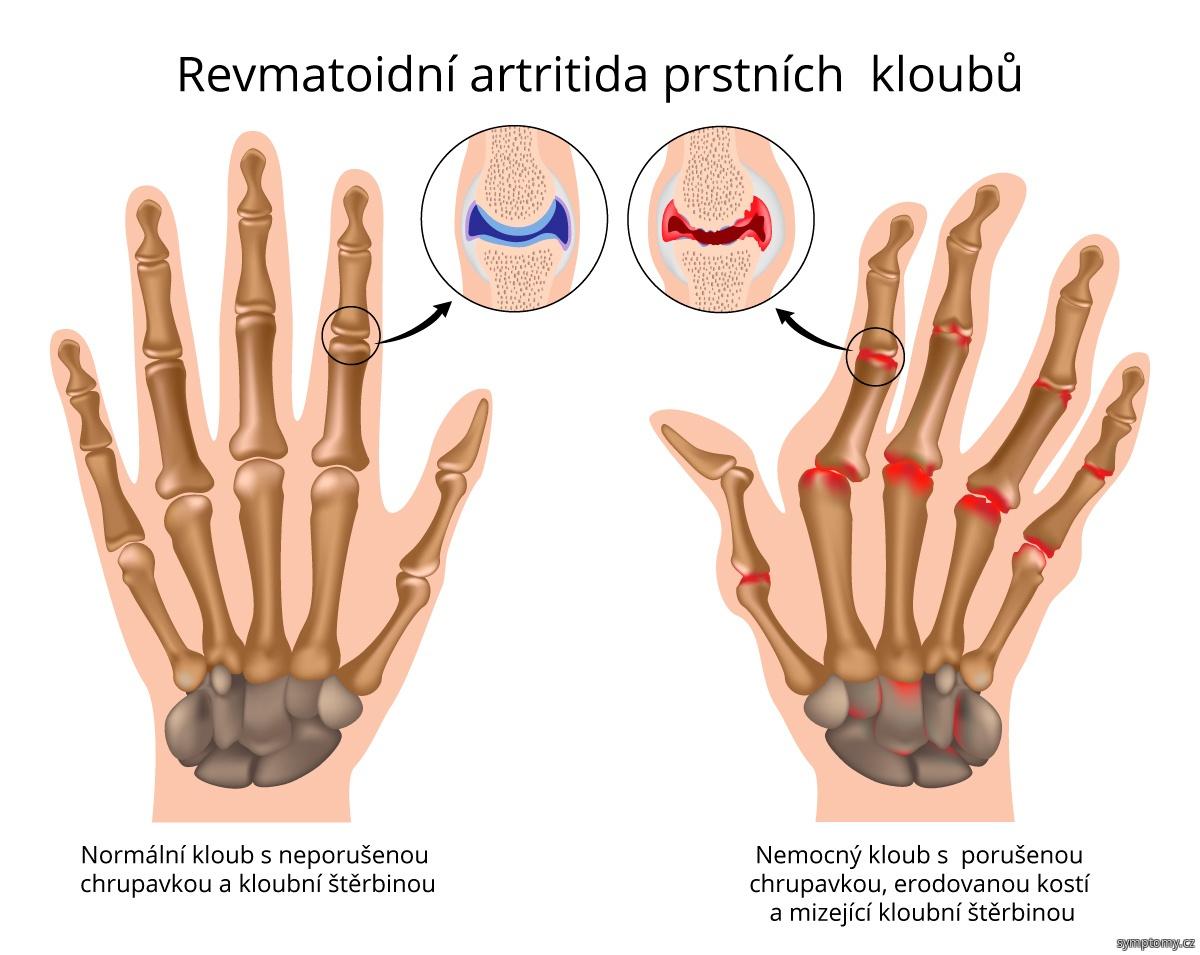 Prstní klouby postižené revmatoidní artritidou