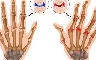 Revmatoidní artritida prstních kloubů