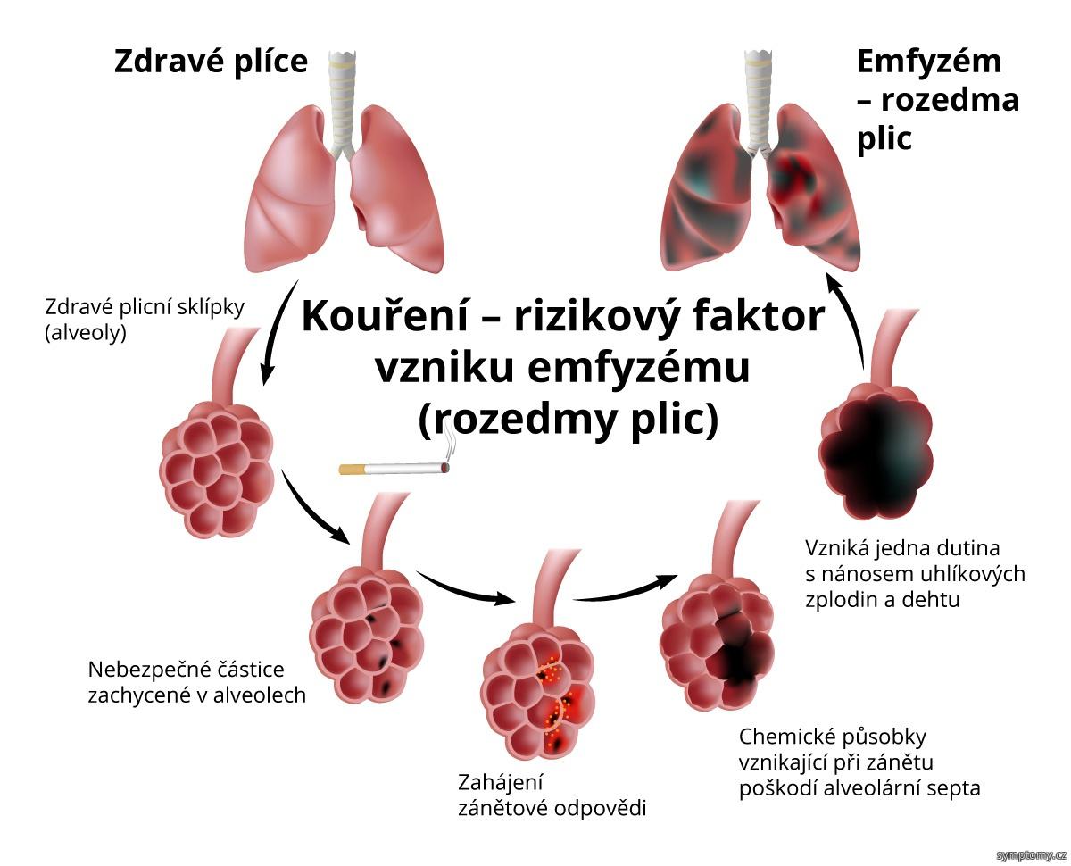 Kouření je rizikový faktor vzniku rozedmy plic