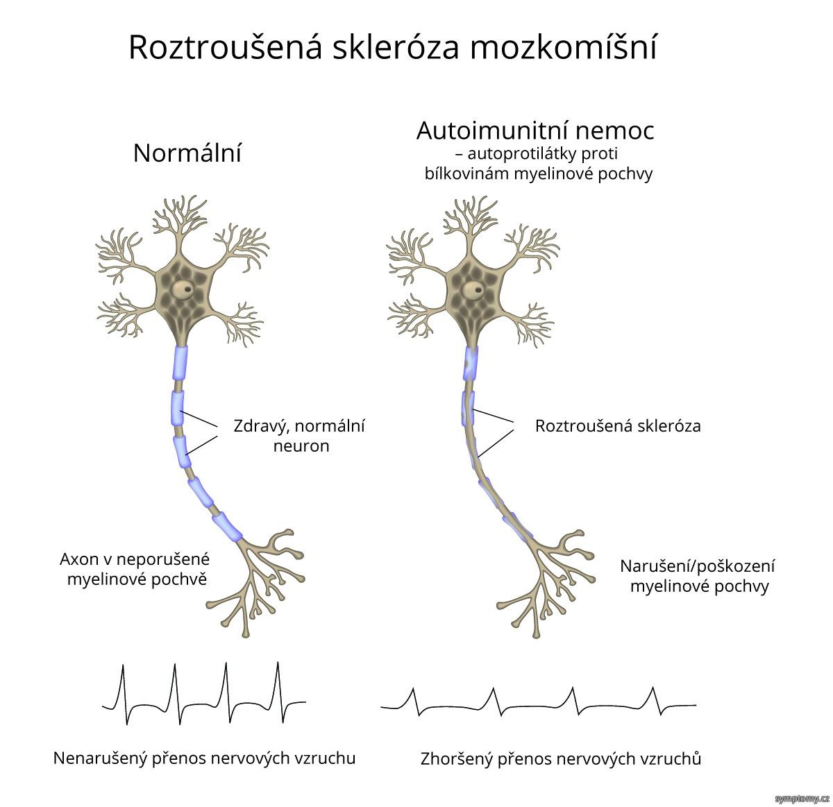 Roztroušená skleróza mozkomíšní