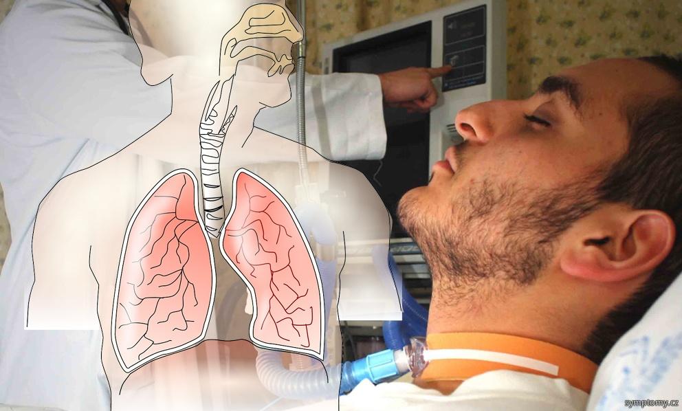 Těžký akutní respirační syndrom, syndrom náhlého selhání dýchání (SARS)