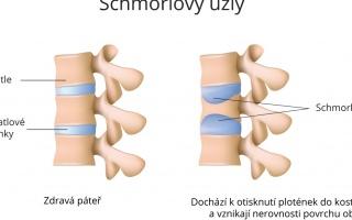 Schmorlovy uzly