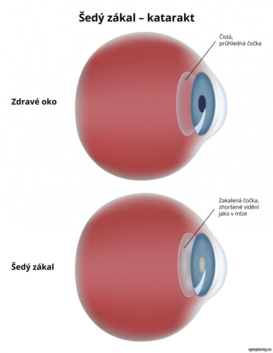 Šedý zákal - katarakt