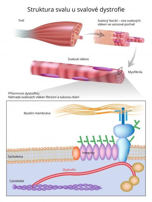 Struktura svalu usvalové dystrofie
