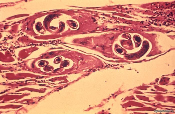 Svalovec stočený (Trichinella spiralis Owen)