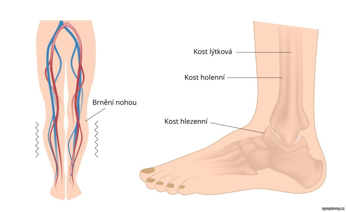 Neklidné nohy