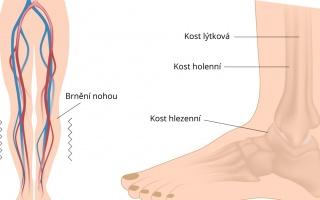 Syndrom neklidných nohou