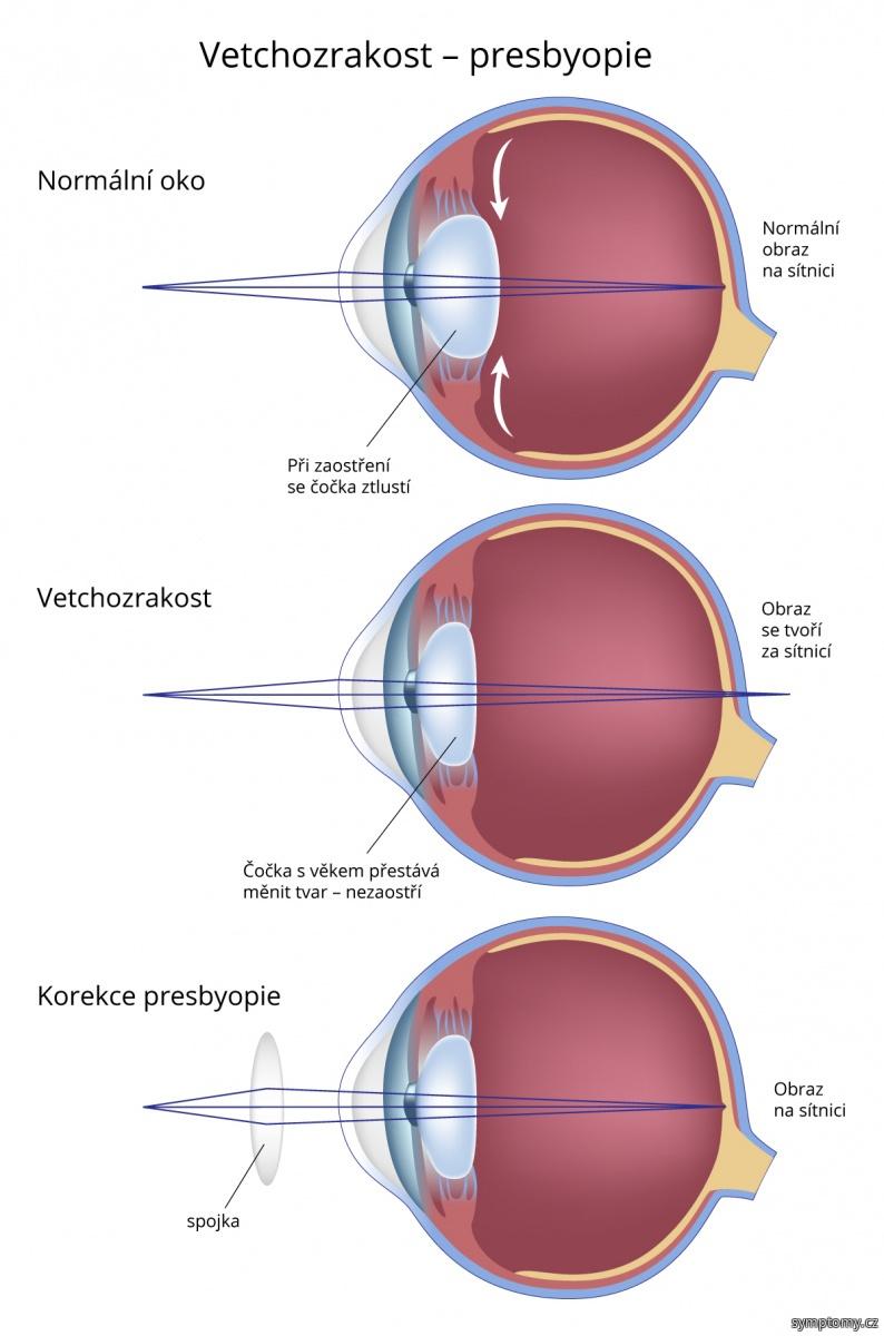 Vetchozrakost (presbyopie)