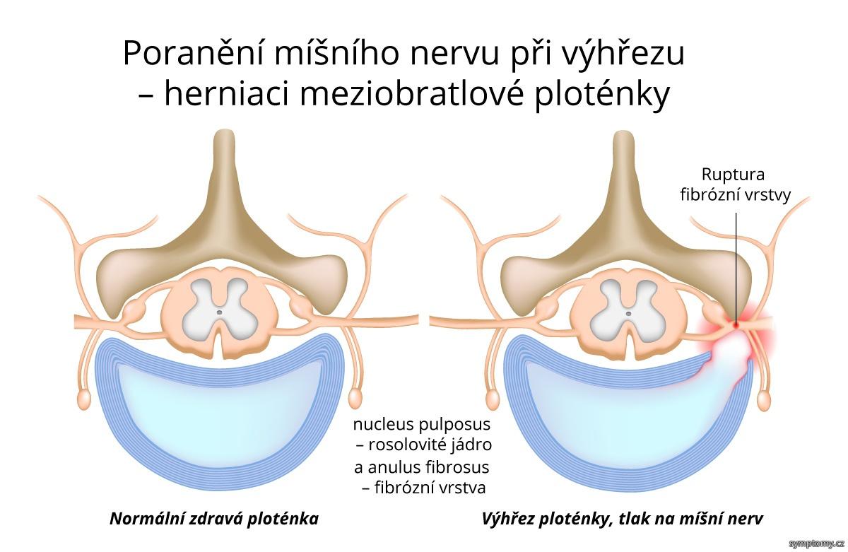 Poranění míšního nervu při výhřezu (herniaci) meziobratlové ploténky