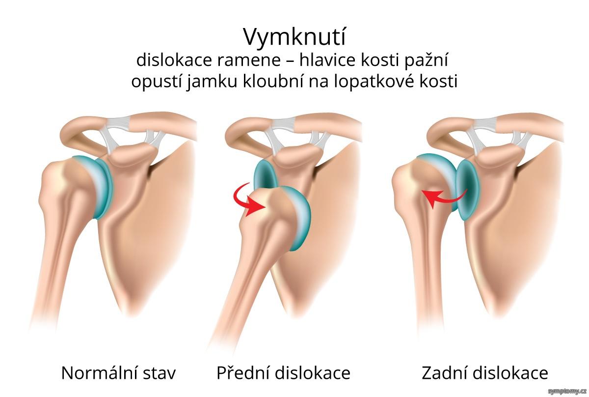 Vymknutí – dislokace ramene