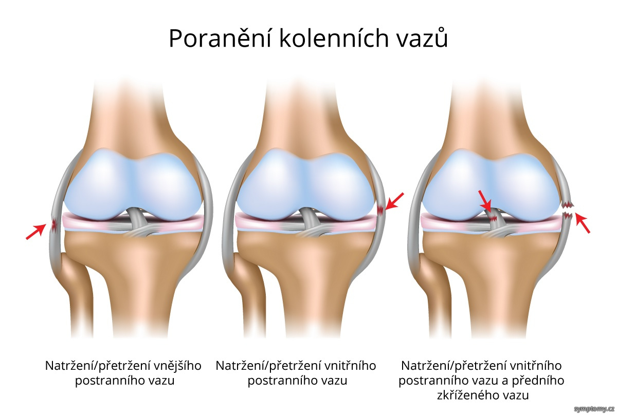 Poranění kolenních vazů