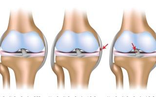 Vymknutí' podvrtnutí kolena