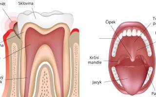 Zánět dásně
