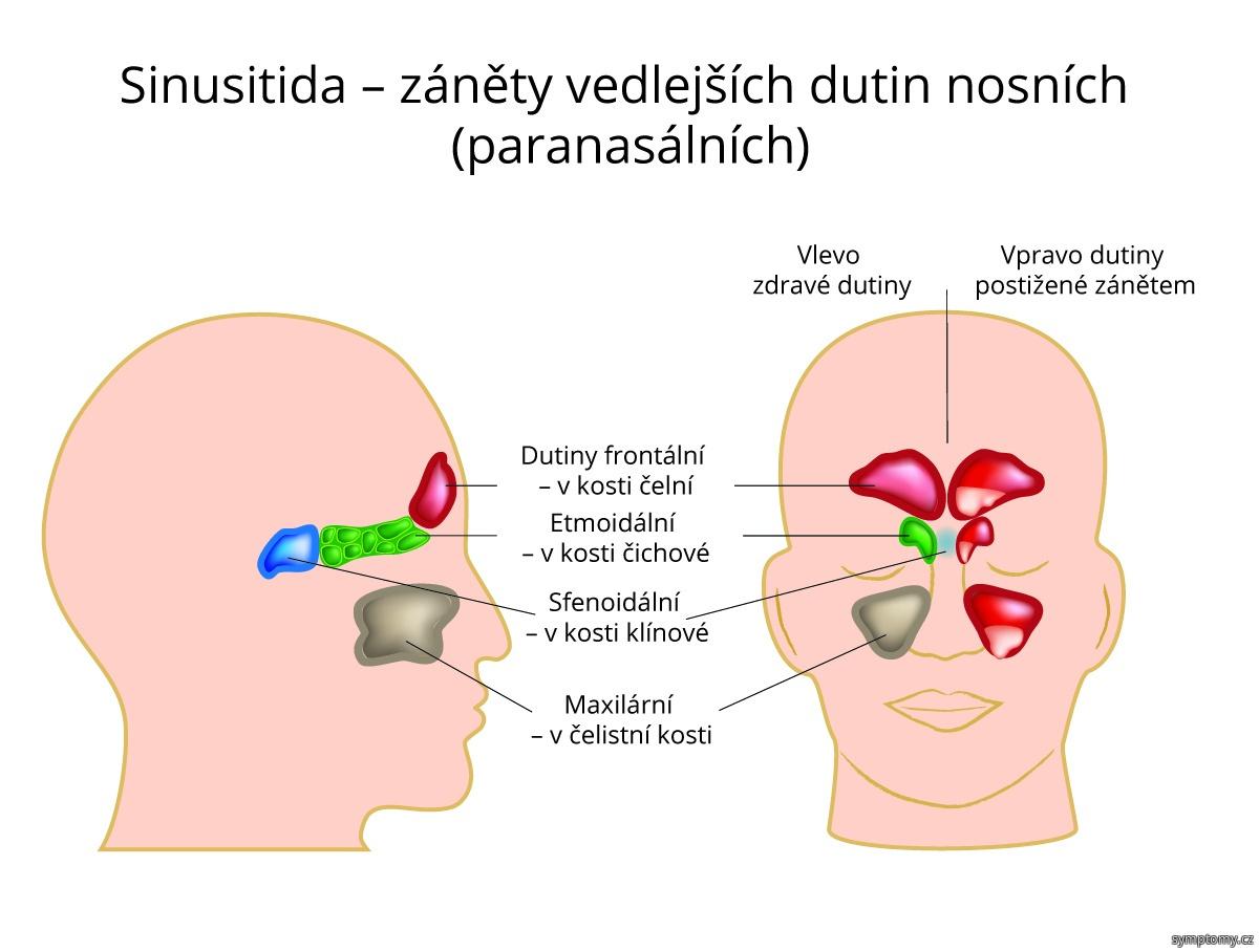 Sinusitida - záněty vedlejších dutin nosních (paranasálních)
