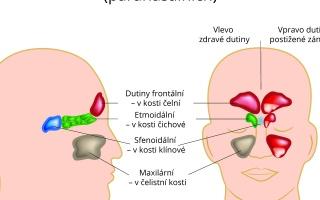 Zánět dutin