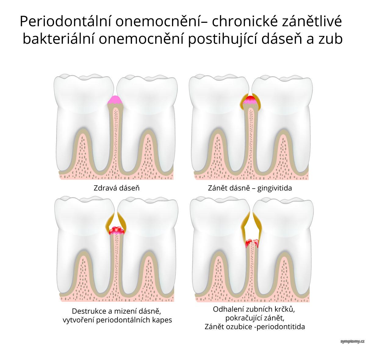 Periodontalni onemocnění