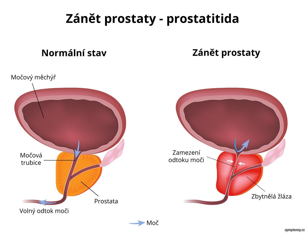 Zánět prostaty (prostatitida)