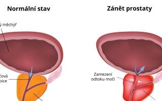 Zánět prostaty