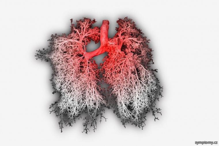 Zánět průdušek plic - bronchitida
