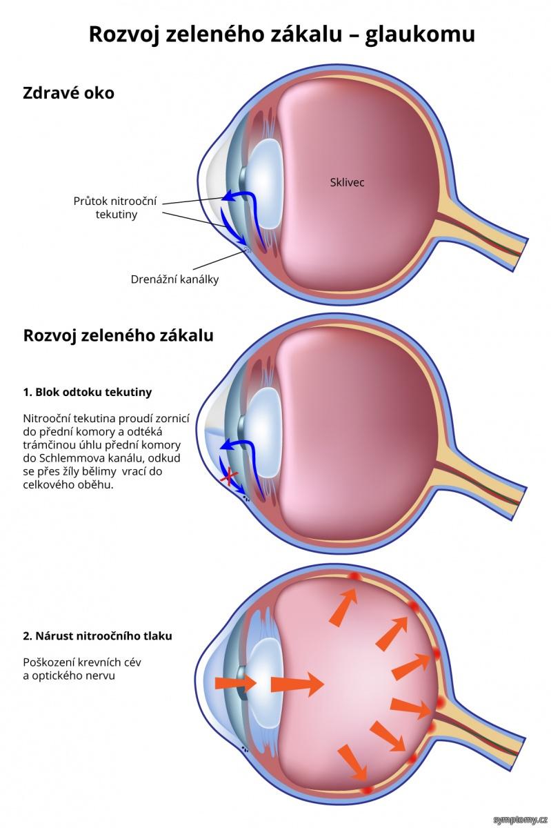 Rozvoj zeleného zákalu - glaukomu