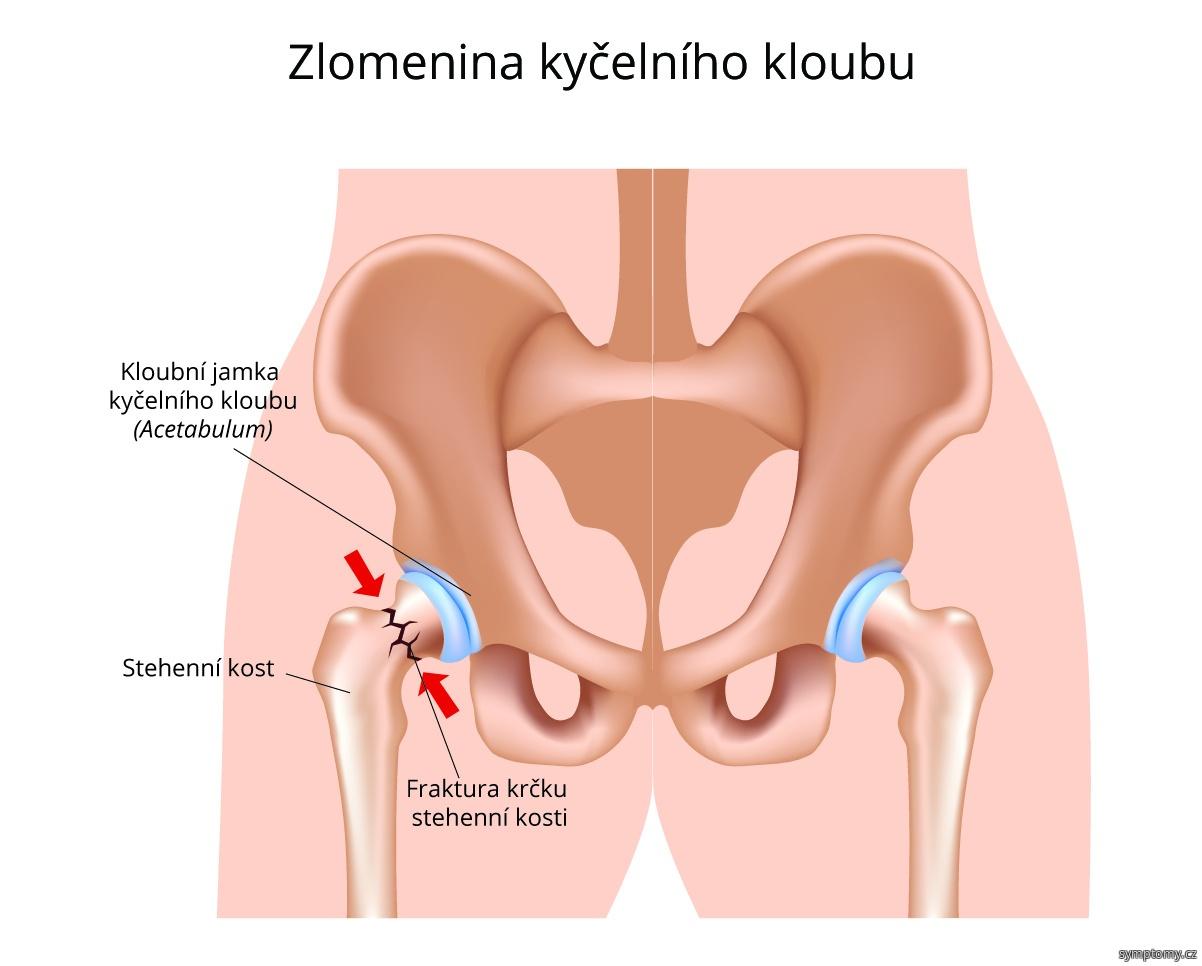 Zlomenina kyčelního kloubu