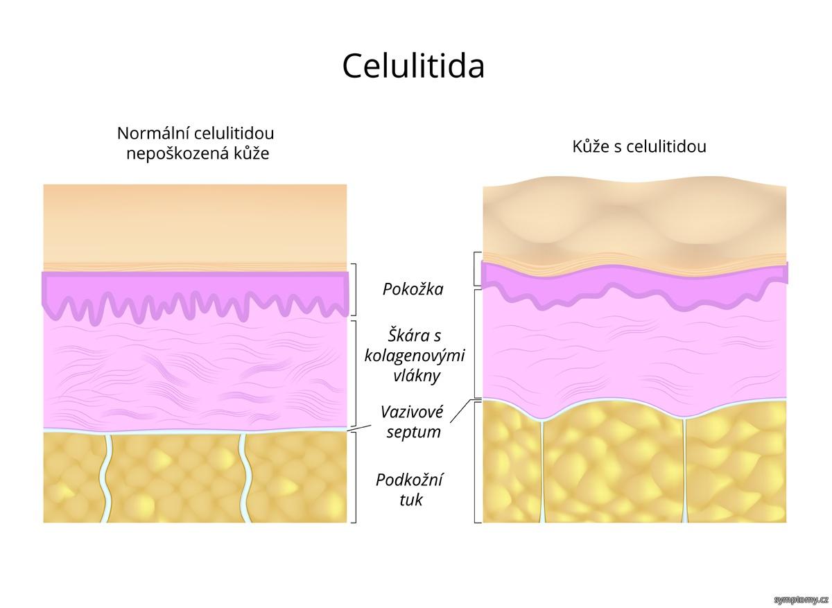 Kůže s celulitidou