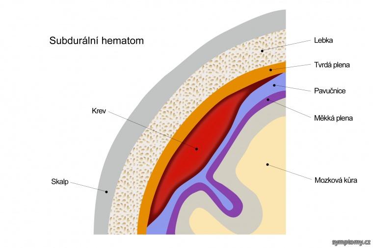 Subdurální hematom