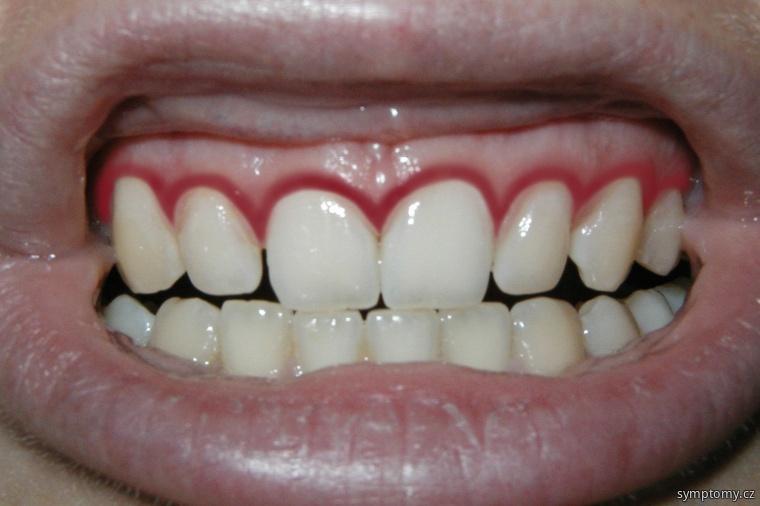 Krvácení dásní
