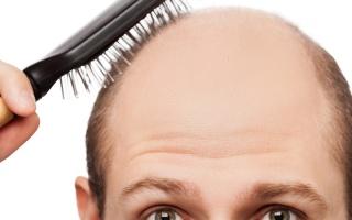 Padání vlasů
