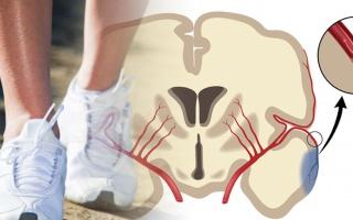 Poruchy chůze