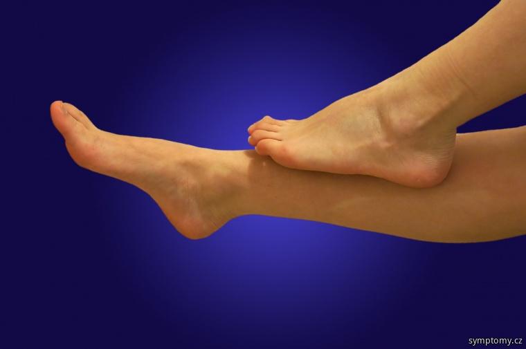 Unavené těžké nohy