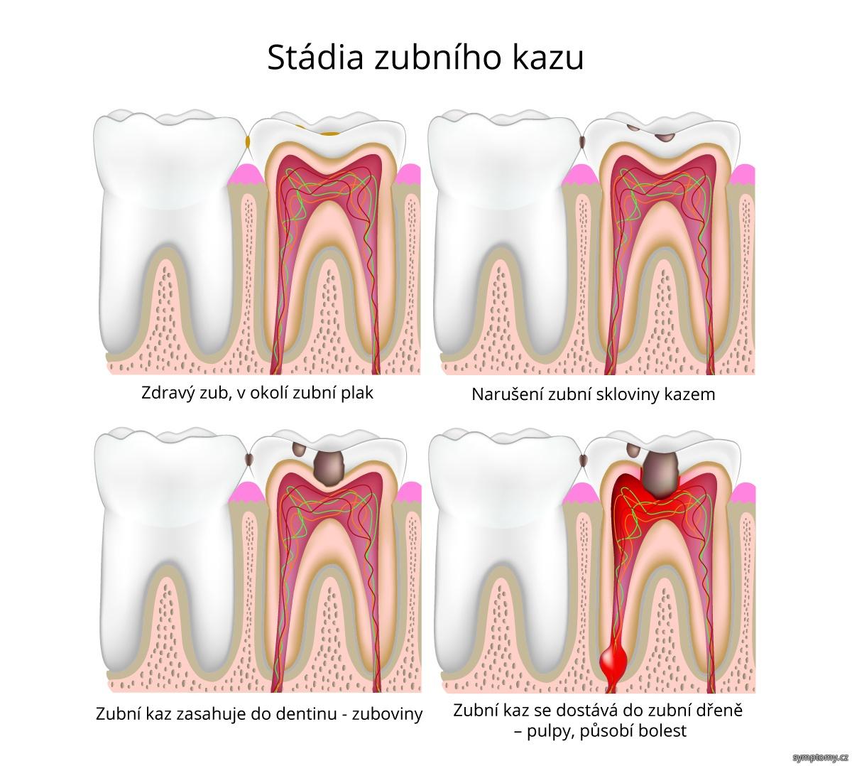 Stádia zubního kazu
