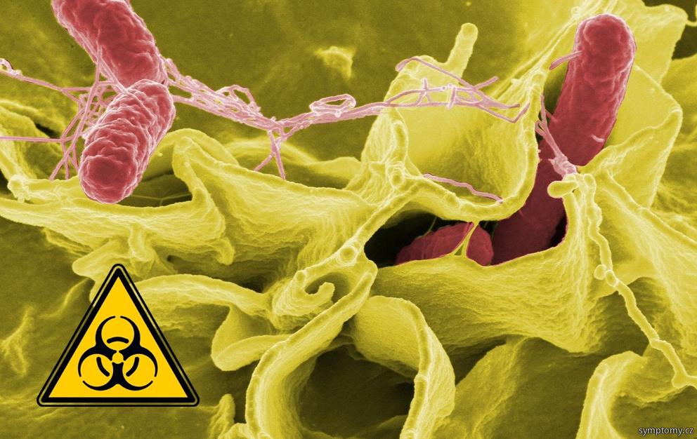 zvětšené lymfatické uzliny při bakteriální infekci