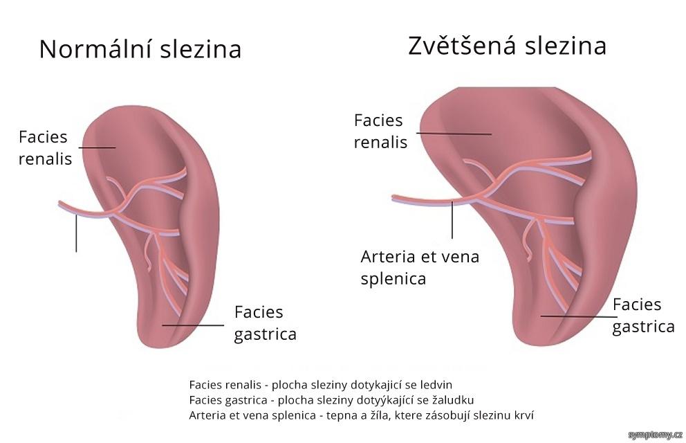 Splenomegalie - zvětšená slezina