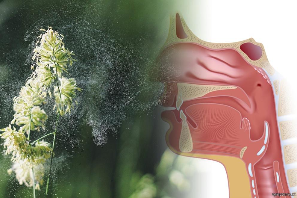 první pomoc při alergii