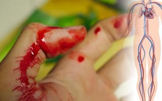 První pomoc při krvácení