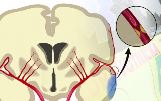 První pomoc při mozkové příhodě