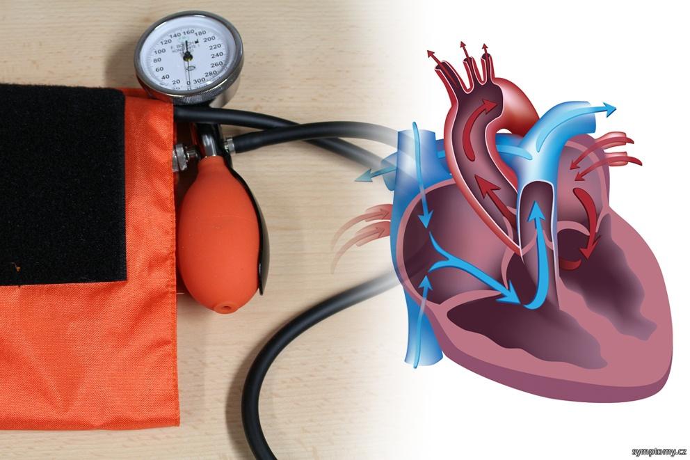 První pomoc při srdeční prihodě