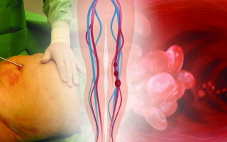 Rizika liposukce