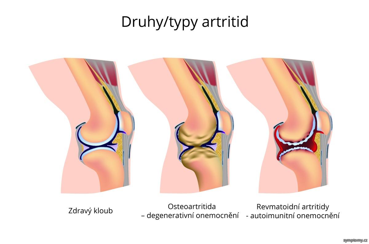 Druhy-typy artritid