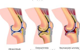 Rozdíly mezi osteoartritidou a revmatickou artriditou