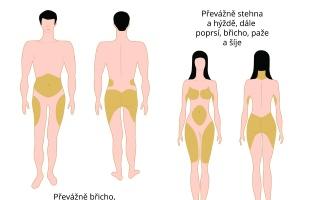 Rozdíly v rozložení podkožního tuku u mužů a žen
