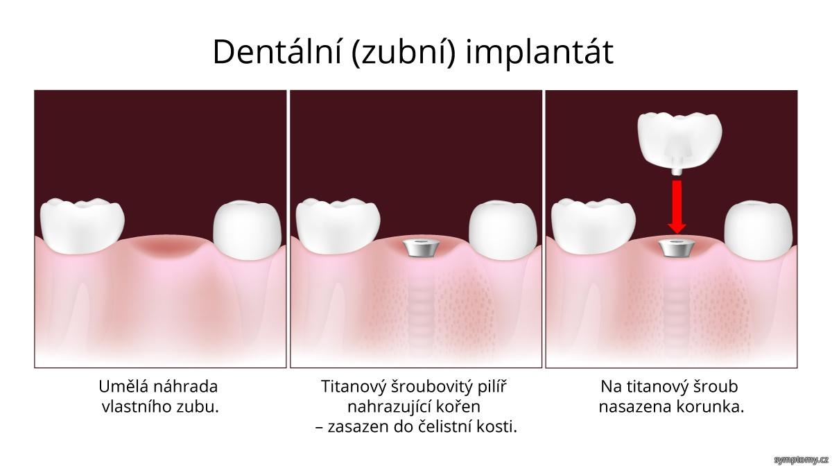 Dentální (zubní) implantát, umělá náhrada vlastního zubu