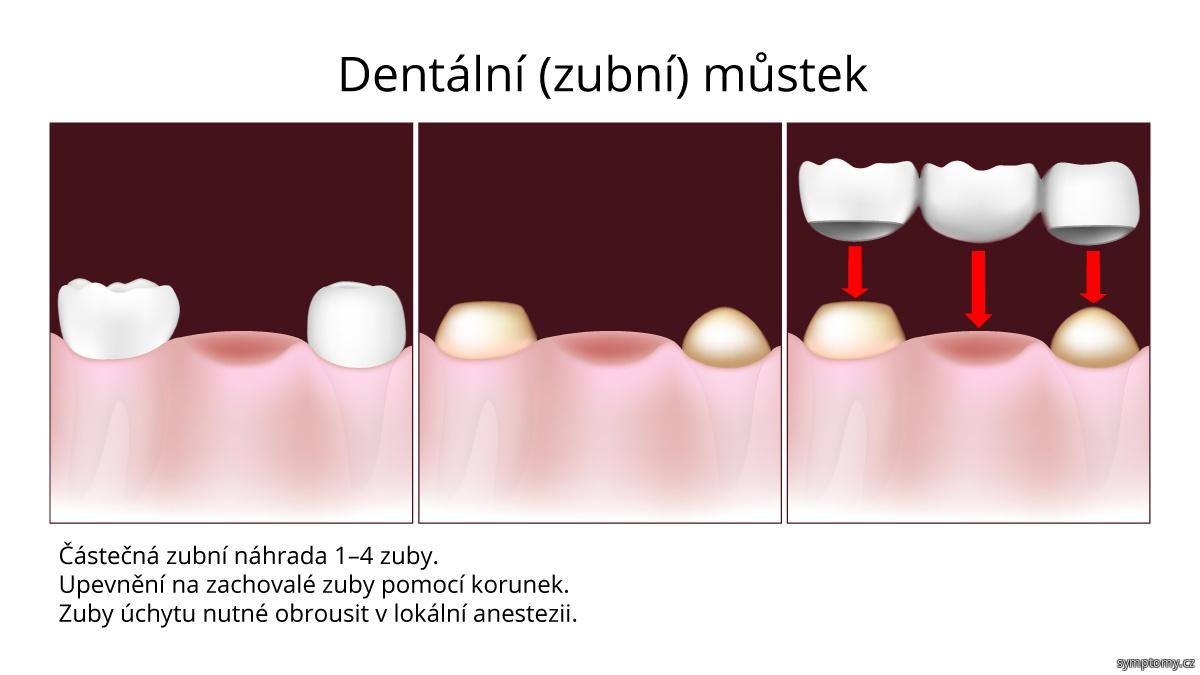 Dentální (zubní) můstek, částečná zubní náhrada