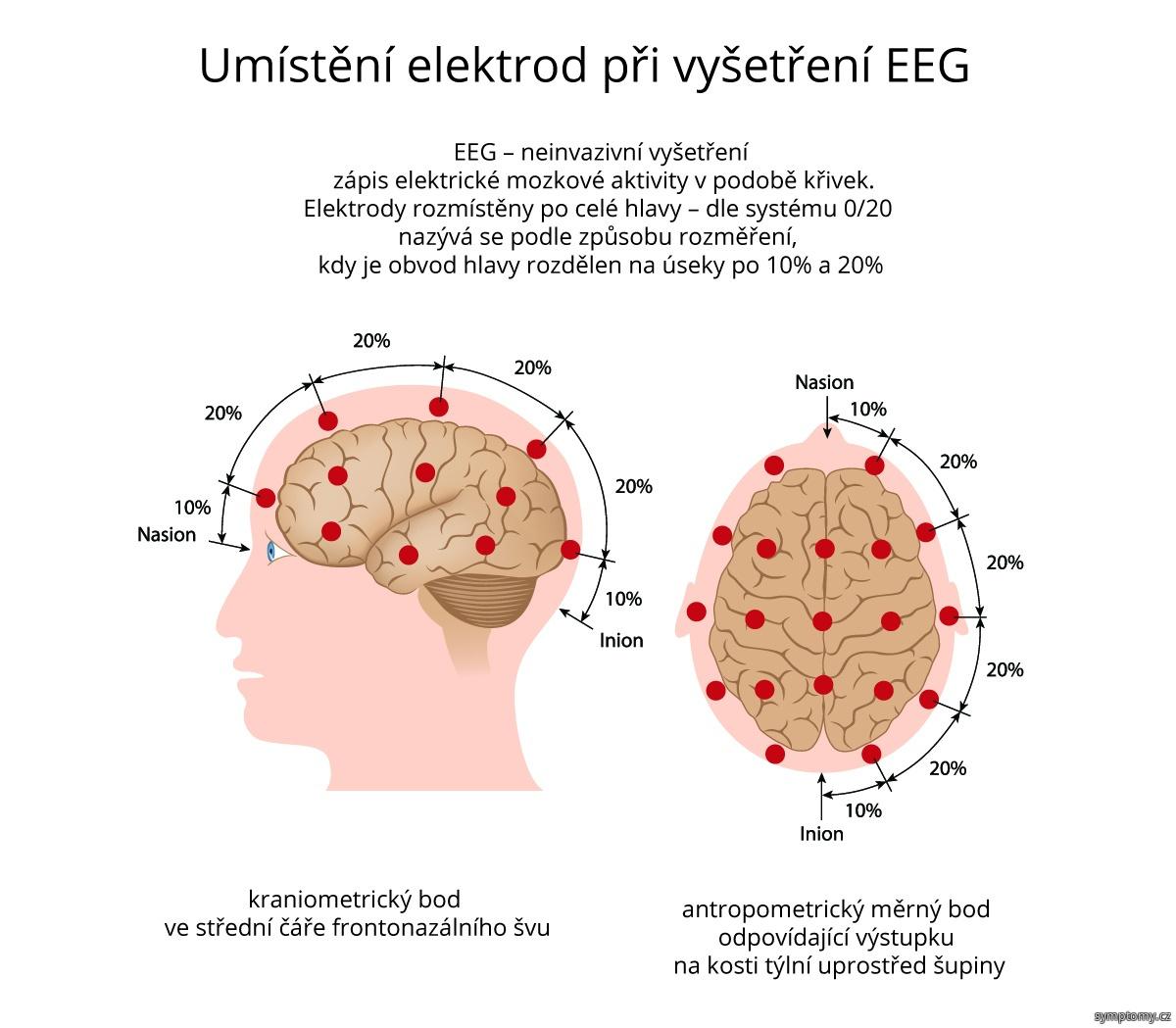 Umístění elektrod při vyšetření EEG